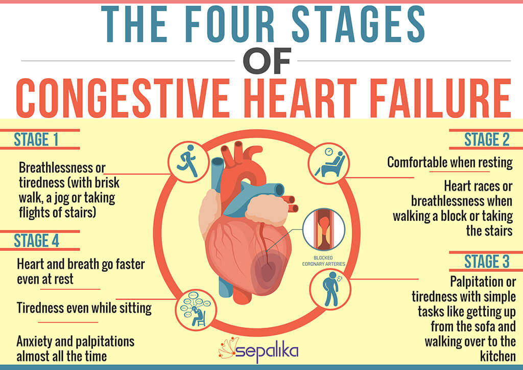 Congestive Heart Failure Doesn T Hen In A Day It Takes Many Months If Not Years To Develop Help Stage Patients And Their Treatments Correctly