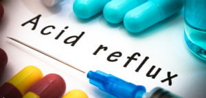 Facts About Acid Reflux