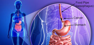 GERD and esophageal cancer