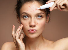 5 Natural Ways to Heal Your PCOS Acne
